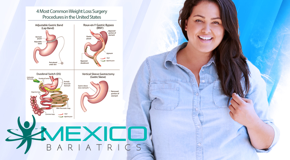 Revision Bariatric Surgery in Mexico