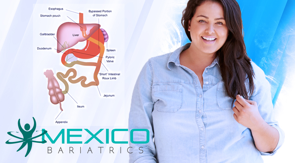 Gastric Bypass Surgery in Mexico.