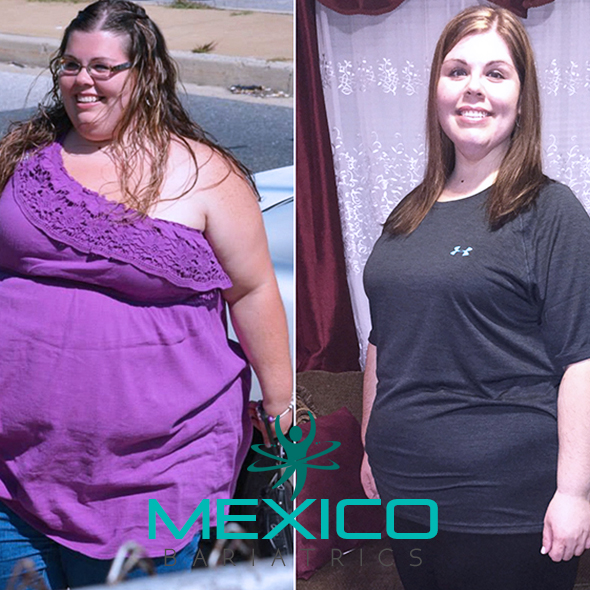 Mexico Bariatrics Testimonial from a real patient.