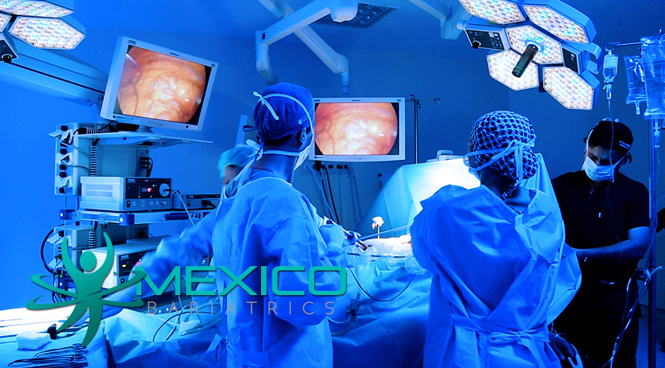 Highly trained bariatric surgeons in Mexico offer affordable bariatric surgery.