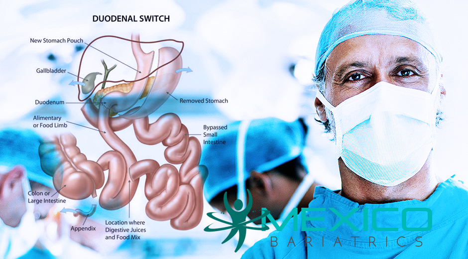Duodenal Switch overview of a weight loss surgery that includes a restrictive component but is primarily a malabsorptive weight loss procedure.