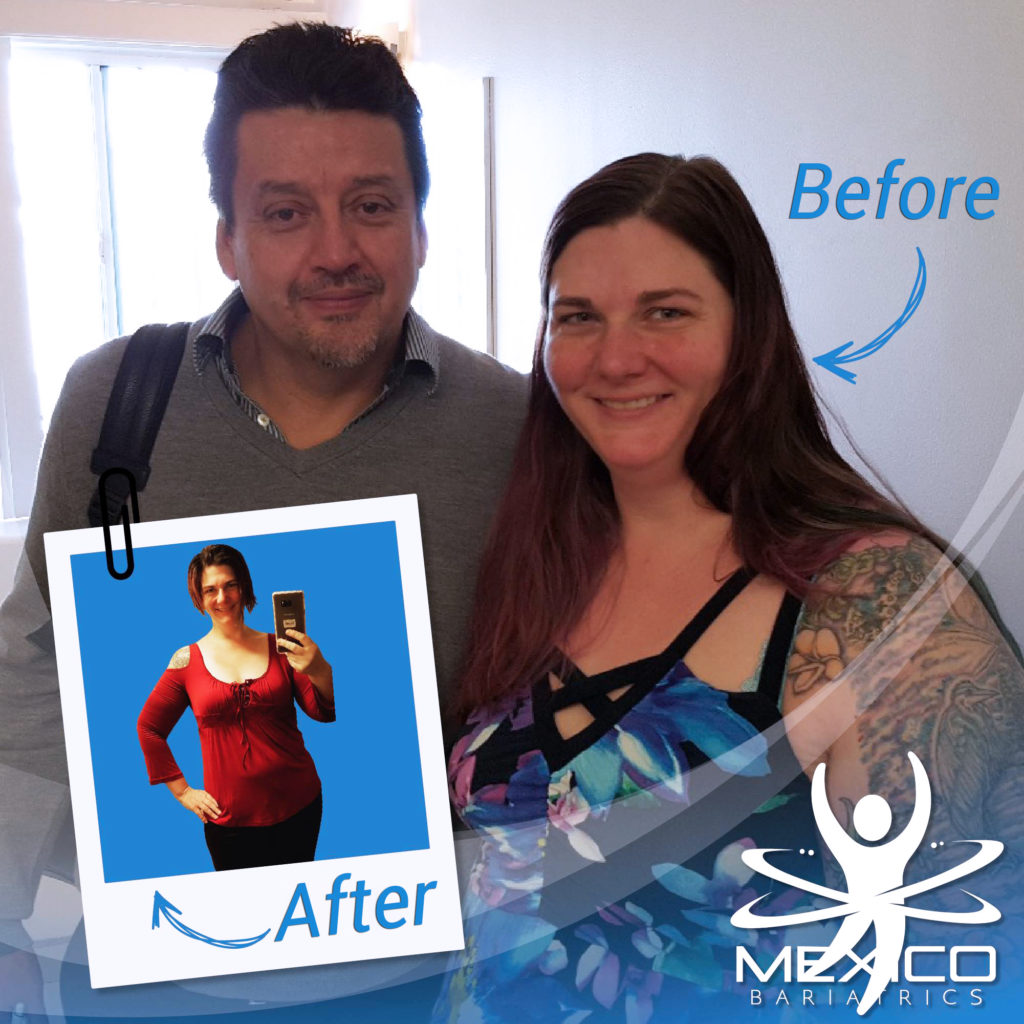 Mexico Bariatrics Patient Reviews of successful bariatric surgery stories in Mexico.